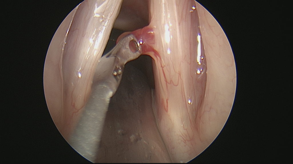 Hemorrhagic Vocal Cord Polyop 2