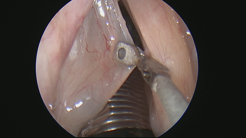 Large Vocal Cord Polyp