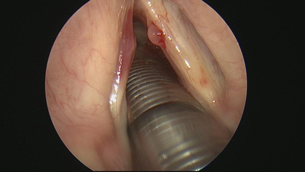 Hemmorgaic Vocal Cord Nodule