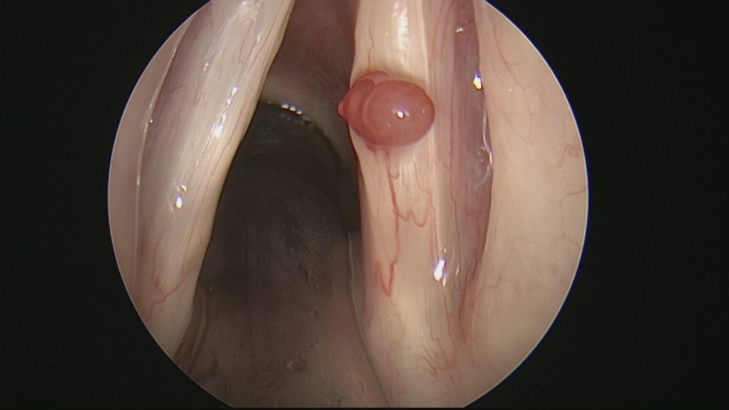 Hemorrhagic Vocal Cord Polyop