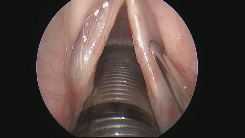 Vocal Cord Polyop Post-Surgery